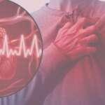 Εντερική δυσβίωση και έμφραγμα του μυοκαρδίου: Νέοι μηχανισμοί της αθηροσκλήρυνσης